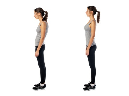 38755494 - woman with impaired posture position defect scoliosis and ideal bearing.
